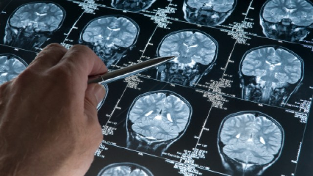 How to have a big, healthy brain