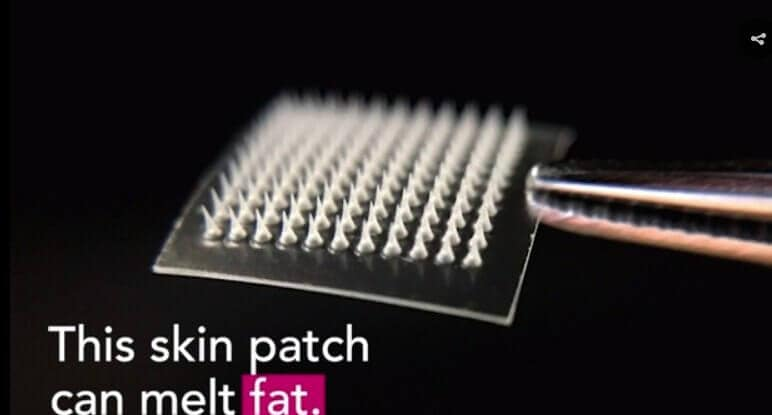 Skin patch dissolves 'love handles' in mice