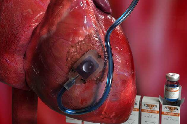 Device can deliver drugs, proteins and stem cells directly to a diseased heart