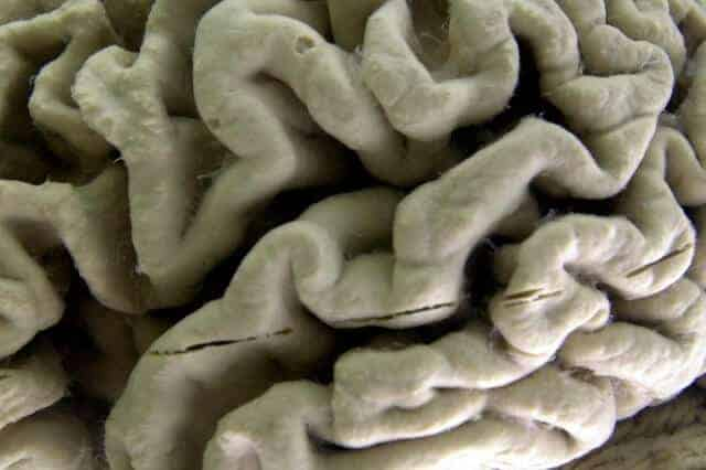 Life experience changes structure of brain