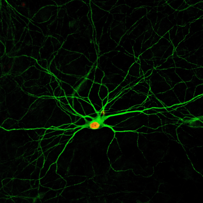 Simple drug combination creates new neurons from neighboring cells