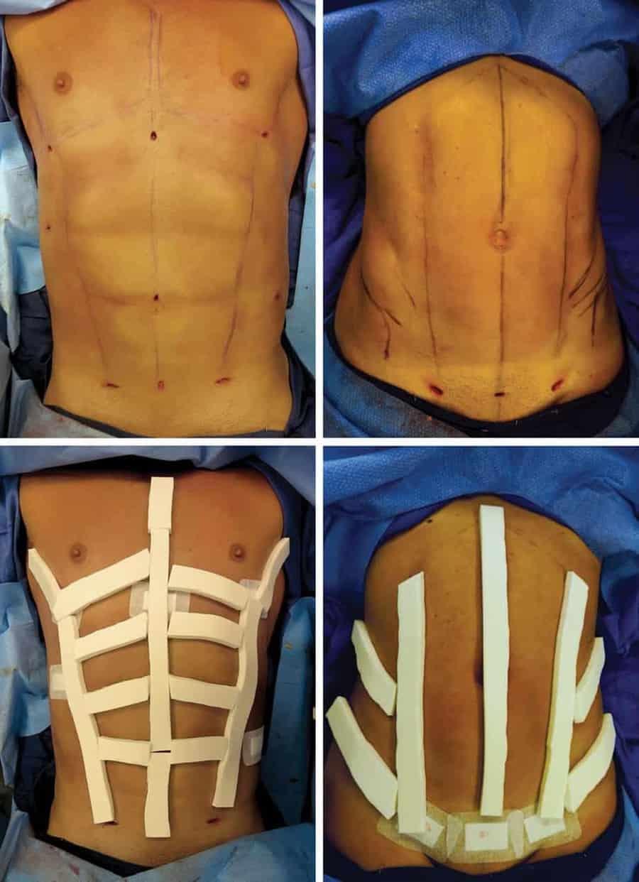 L'incision abdominale pour six abdominaux est une chose   – abdomino