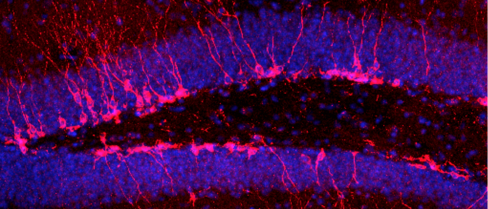 Though Few in Number, Young Neurons Have Big Impact
