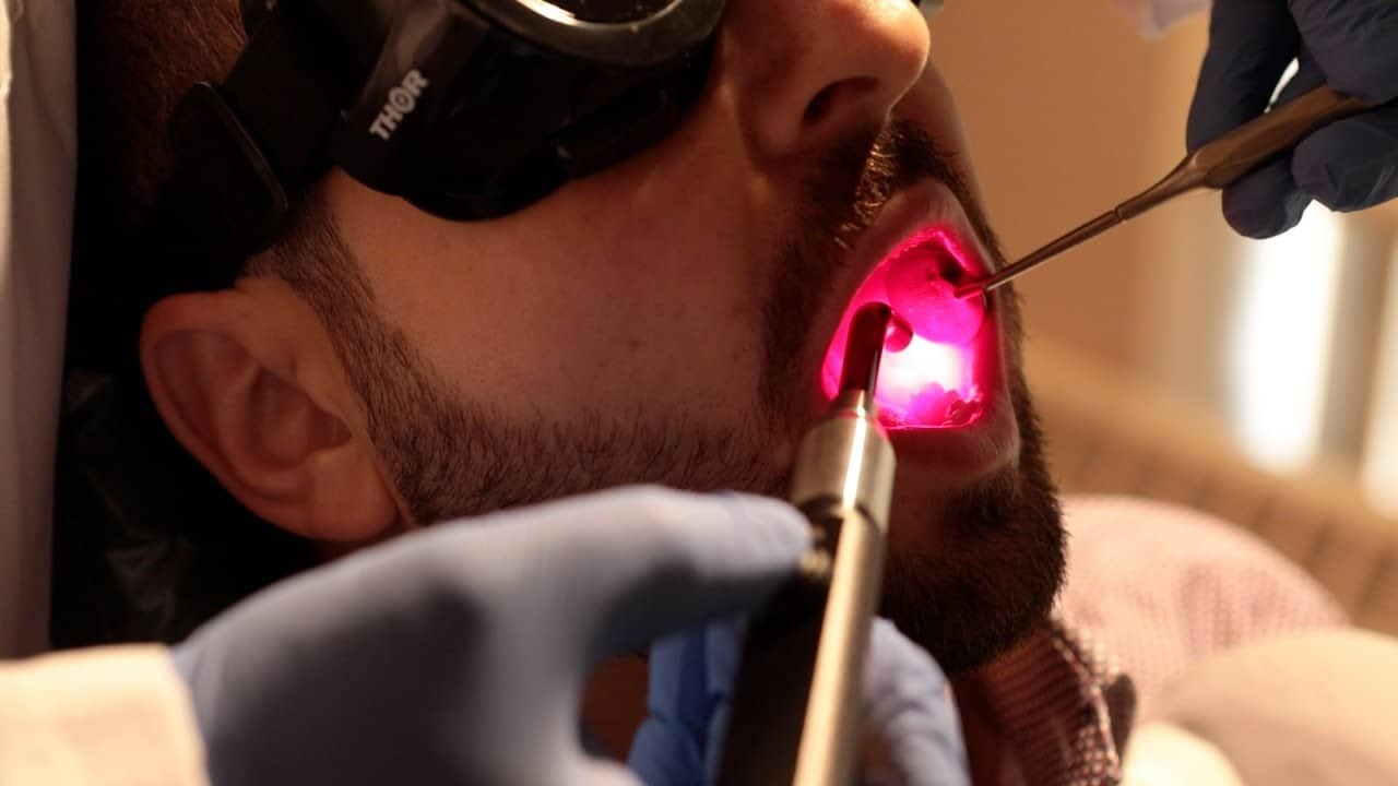 Light therapy could replace opioids as main treatment for cancer treatment mouth ulcers