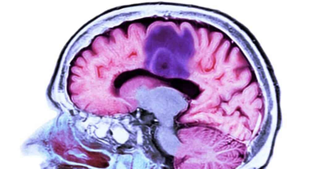 Study Finds New Pathway For Potential Glioblastoma Treatment