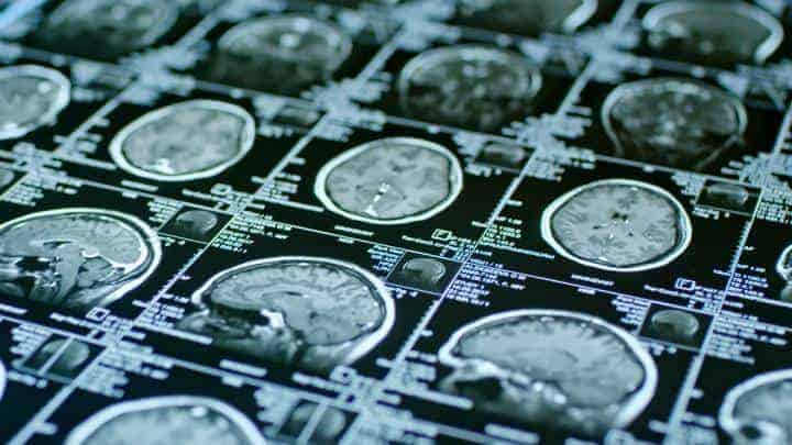 Neurological brain markers might detect risk for psychotic disorders