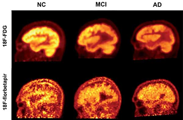 The brain's amyloid buildup is not a powerful indicator of Alzheimer's disease
