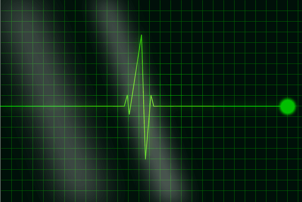 Artificial intelligence could use EKG data to measure patient's overall health status