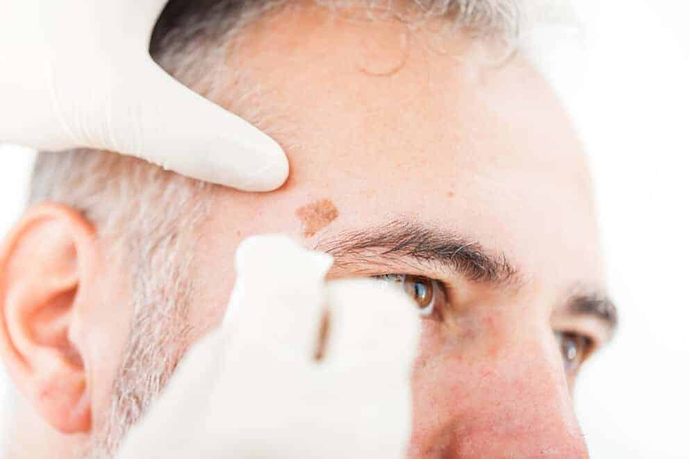 Aesthetics of skin cancer therapy may vary by treatment type