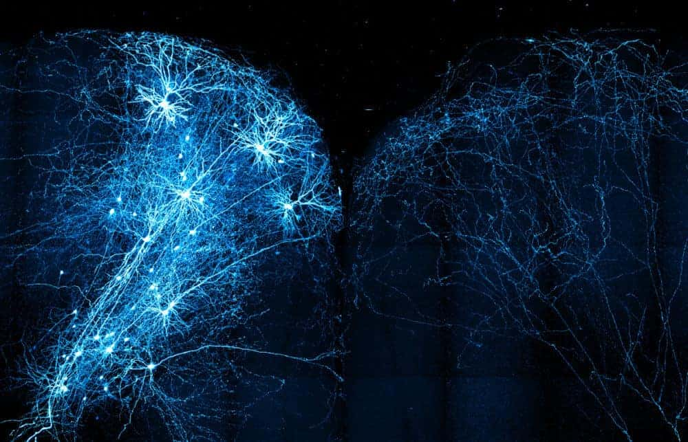 MouseLight Project Maps 1,000 Neurons (and Counting) in the Mouse Brain