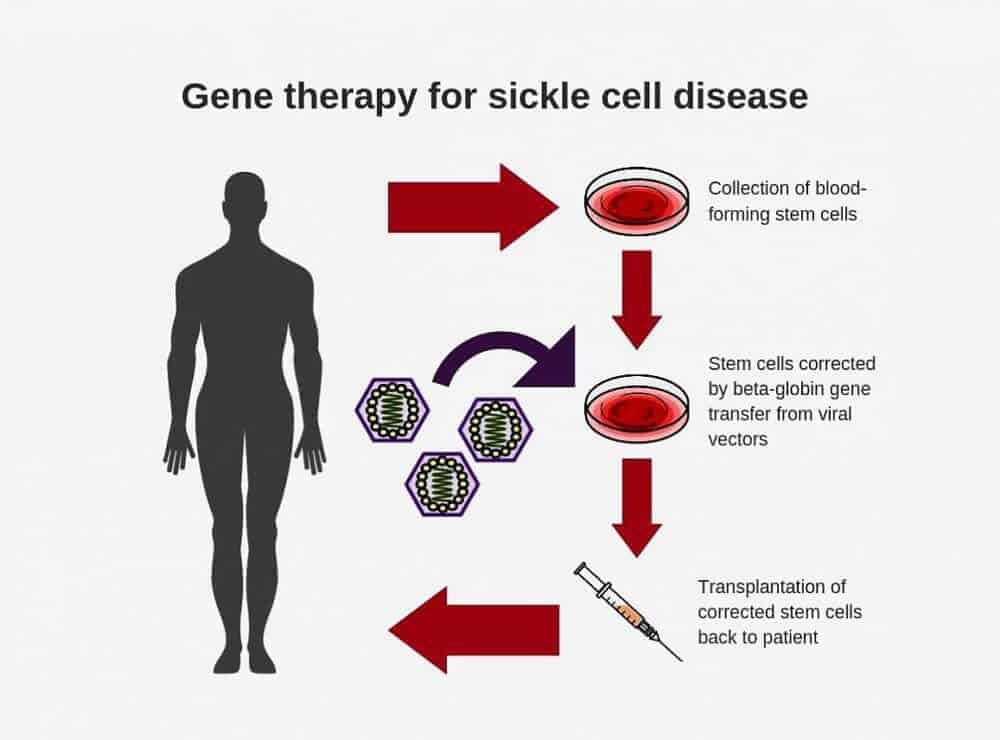 NIH researchers create new viral vector for improved gene therapy in sickle cell disease