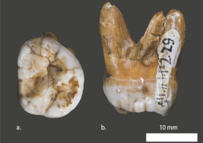 Denisovans fossil tooth Altai