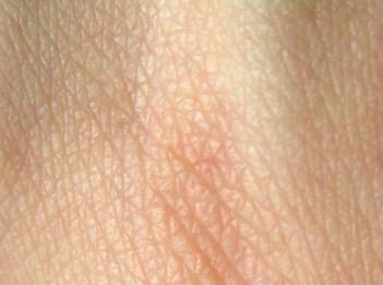 """Résultat de recherche d'images pour """"la peau"""""""