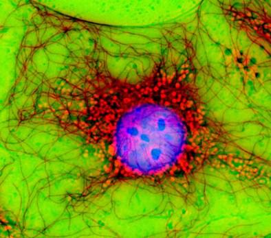 - Cell Portraits von Dr. Jan Schmoranzer - cc by nc nd