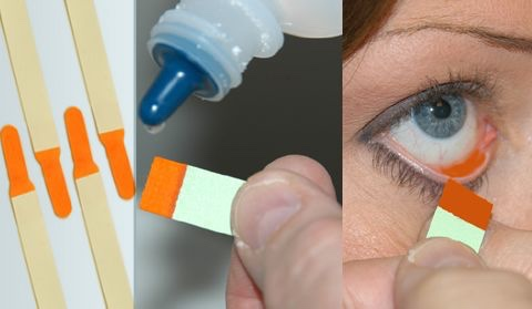 important dyes used in ophthalmology