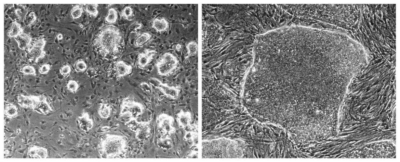 Gauging stem cells for regenerative medicine
