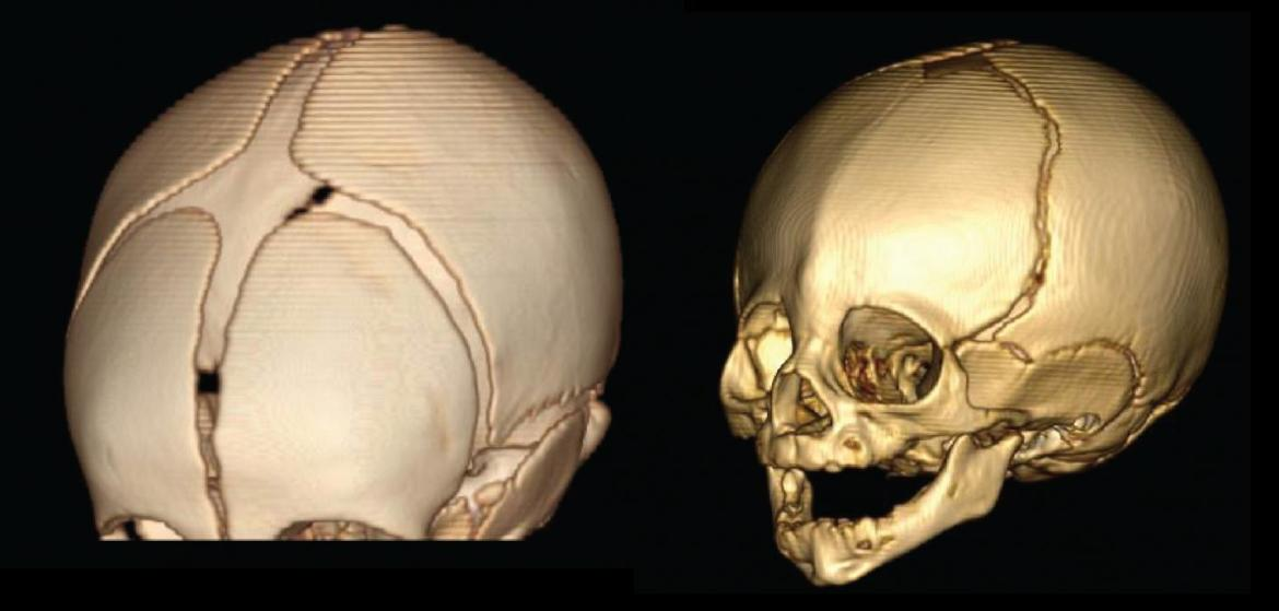 Rare and common genetic variants combine to cause skull-fusion disorder