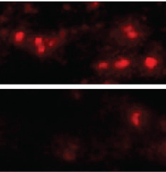 synuclein aggregates in the brain cells of mice with (top) and without (bottom) the LAG3 protein. Credit: Xiaobo Mao