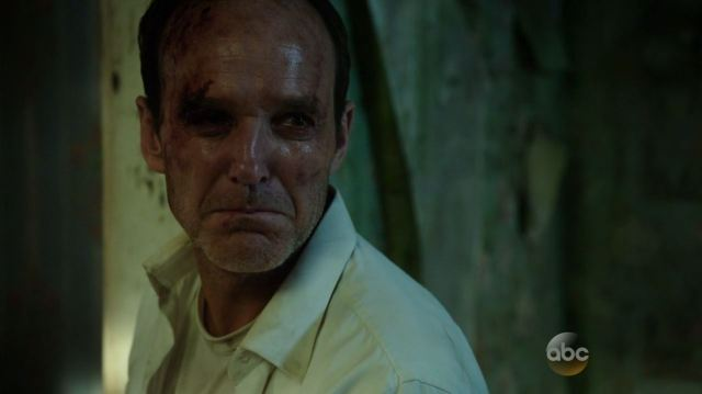 Agents of SHIELD - The Magical Place - Clark Gregg as Coulson after being beaten