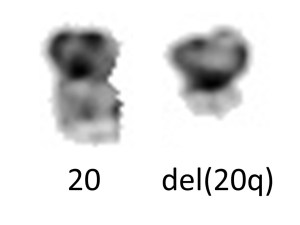 "A normal chromosome 20 (left) and an abnormal 20 which is missing most of the long arm (""del(20q)"")."