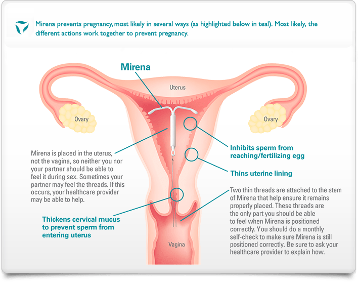 Diagram of the female reproductive system, showing how the Mirena IUD sits in the uterus, not the vagina. The Mirena inhibits sperm from reaching/fertilizing egg, thins uterine lining, and thickens cervical mucus to prevent sperm from entering uterus.