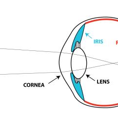 image on optic nerve [ 1497 x 799 Pixel ]