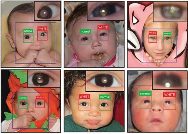 Eye Disease Detector App
