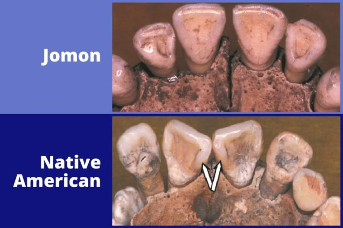 Jomon and Native American Teeth