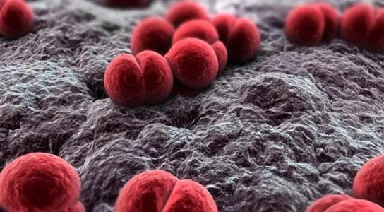 Meningitis-Outbreak