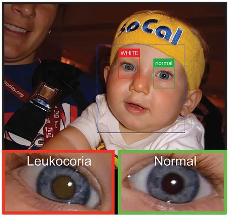 White Eye Detector App
