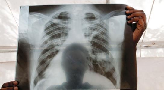 A chest X-ray from a patient with tuberculosis (TB) in Lira, Uganda. Uganda is one of 22 countries accounting for roughly 80% of new TB cases each year. Credit: J. Matthews/Panos