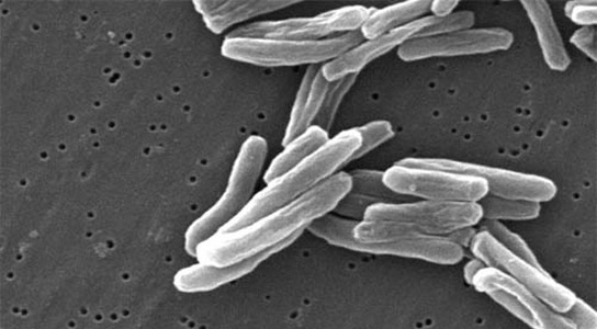 multi-drug-resistant-tuberculosis