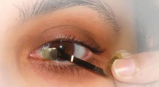 retinal-prosthetic