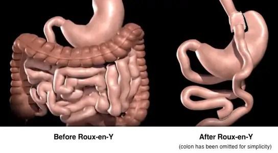 roux-en-y-bypass-surgery