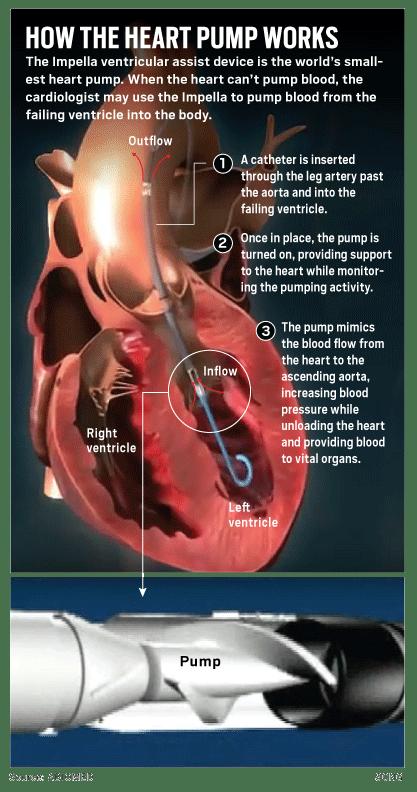 OCR-L-HEARTPUMP-0613