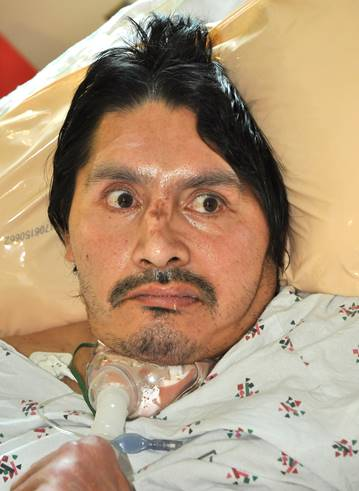 LA County health officials are asking the public for help in identifying a patient who has been hospitalized for more than five months. The unidentified man has been a patient at LAC+USC Medical Center since Aug. 19, when he was found by paramedics near 6th and Alvarado streets in the MacArthur Park area of Los Angeles. (Photo courtesy LAC+USC Medical Center)