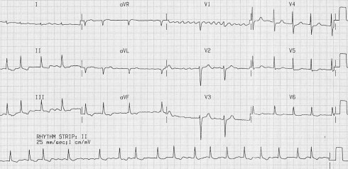 Atrial Fibrillation • LITFL Medical Blog • ECG Library Diagnosis