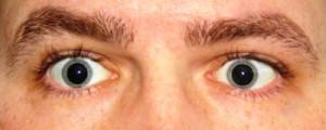 dilated-eyes