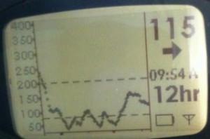 Image of a Dexcom Seven Graph