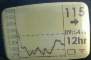 Image of a Dexcom Seven Graph