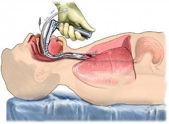IOT, coupe anatomique d'une intubation