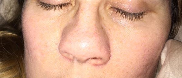 michele-nose