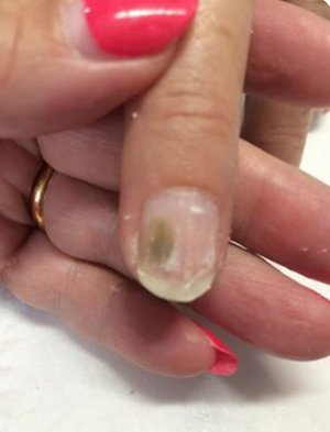 Infected Toenail - Types, Pictures, Causes of Toenail