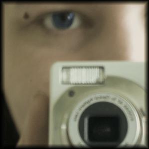my eye and its beautiful mole