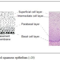 Stratified Columnar Epithelium Diagram Life Cycle Of A Labeled Moss Colposcopy And Treatment Cervical Intraepithelial Neoplasia Figure 1 2 Squamous
