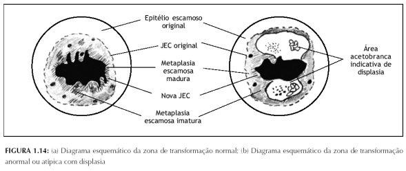 Colposcopia e tratamento da neoplasia intra-epitelial