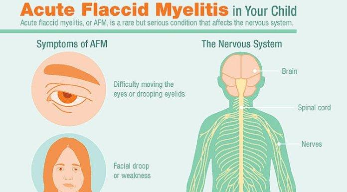 Acute Flaccid Myelitis Symptoms
