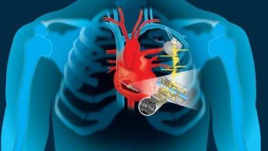 "Photo of მუდმივი ""ძრავი"": გულის ენერგიის გამოყენება შესაძლებელია კარდიოსტიმულატორის დამუხტვისთვის"