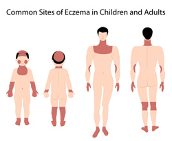 "Eczema — ""The itch that rashes"""