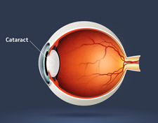 How safe is cataract surgery?